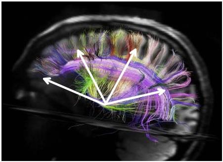 Brain Growth Emotions