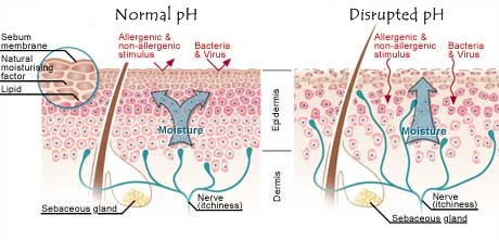 Healing Skin By Altering It S Ph Amp Microbial Malassezia